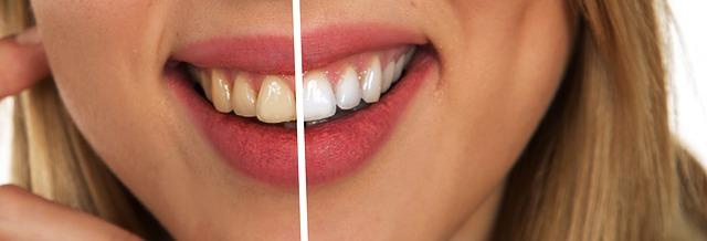 Terveemmät ja valkoisemmat hampaat